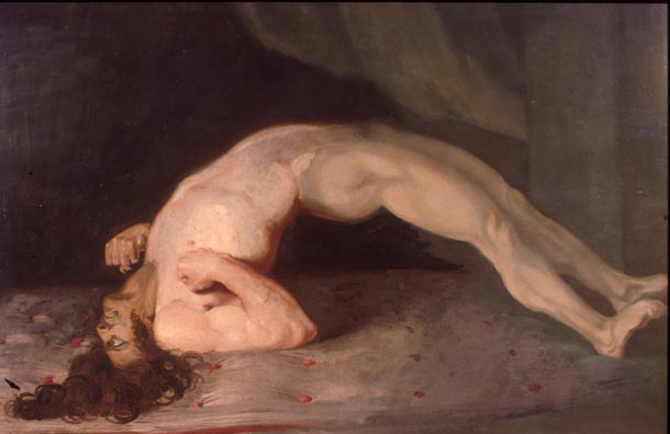 opisthotonus_in_a_patient_suffering_from_tetanus_-_painting_by_sir_charles_bell_-_1809